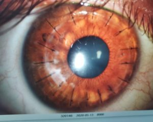 cornea transplant and have stitches in eye