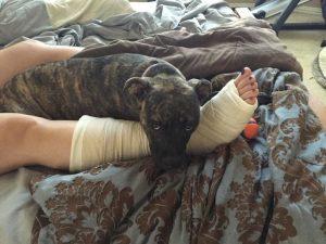 protecting wife's broken leg