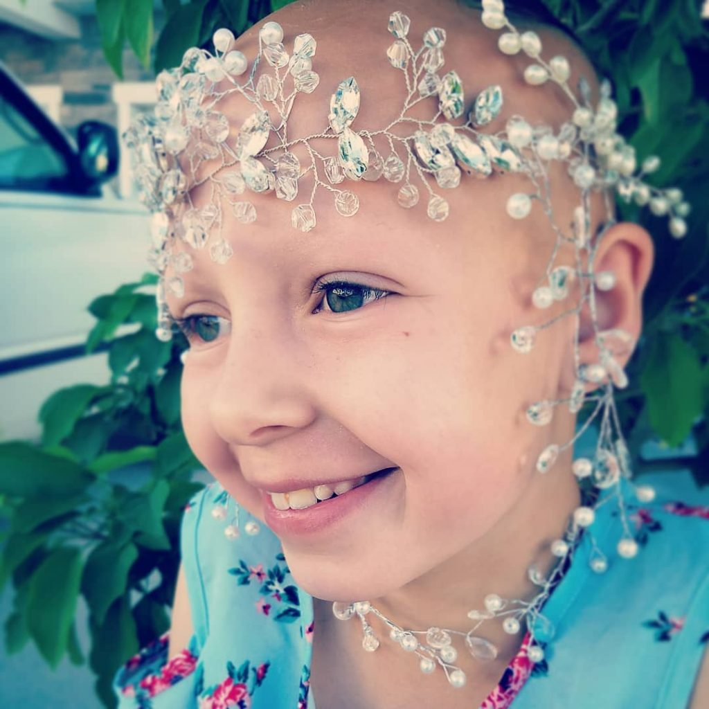 """A Little Girl With Alopecia Areata Says """"Crazy Hair Day"""" At School """"Now I Love Being Bald"""""""