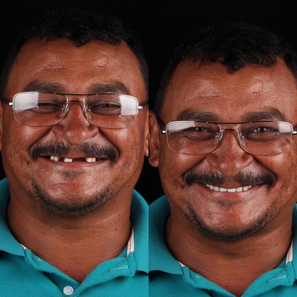 The Dentist performs over 1,500 free surgeries & brings back the smiles on their faces.