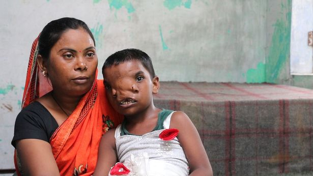 Her family are looking for financial aid to help Lakshimi lead a more normal life