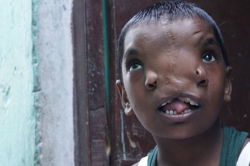 Lakshimi has been hailed for her looks as locals compare her to a Hindu God in India